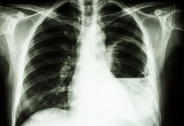 Gambar hiyam putih hasil pemeriksaan rontgen thorax untuk menilai kondisi paru-paru