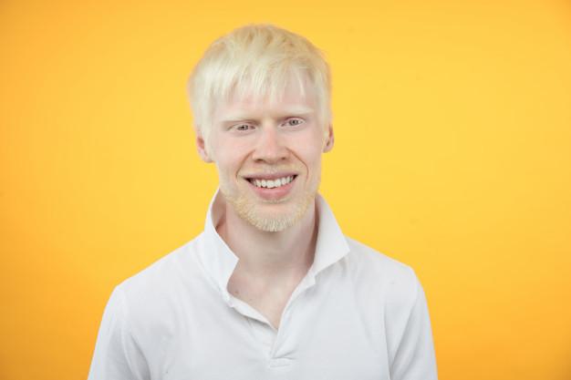 Albisnisme - Pria dengan kondisi albinisme (albino)