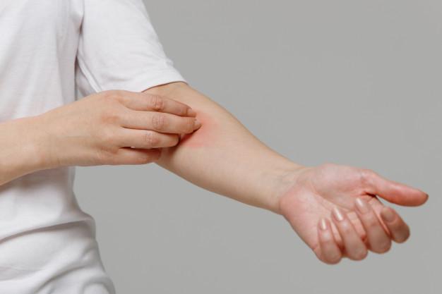 Bisul - Seorang wanita menggaruk tangannya yang terasa gatal