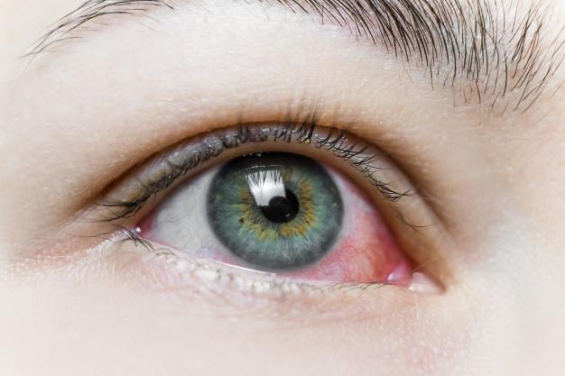 Mata merah dan berair yang sering dialami penderita blefaritis