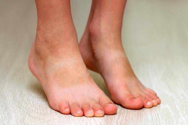 Gambar telapak kaki datar
