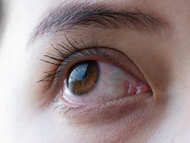 Gambar mata sebagai simbol tempat terjadinya penyakit glaukoma