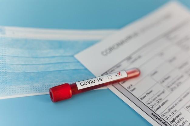 Alat rapid test untuk skrining awal COVID-19