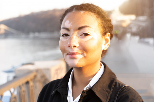 Vitiligo - Seorang wanita yang memiliki gangguan pigmentasi kulit